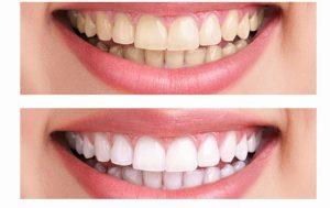 Современные методы отбеливания зубов в условиях клиники